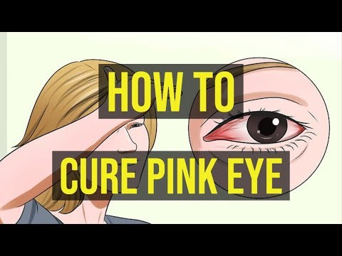 How to cure pink eye in 1 minute