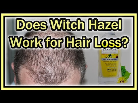 Does witch hazel work for hair loss?