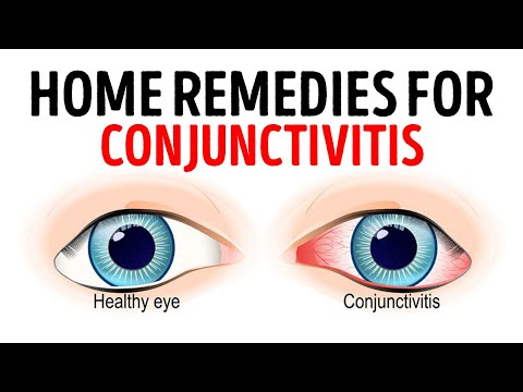 ✅ how to treat pink eye    treatment for bacterial conjunctivitis    best treatment for pink eye