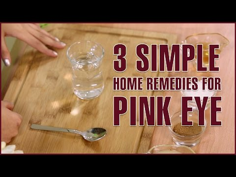 3 simple natural home remedies for pink eye treatment